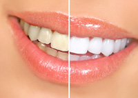 Teeth whitening in the Cordova, Collierville and Eastern Memphis, TN Area